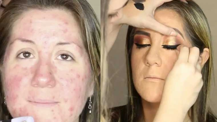 Beauty-bloggers-acne-hiding-video-goes-viral